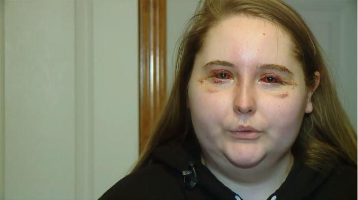 Egy fiatal lengyel lány elvesztette látását a szemén lévő tetoválás miatt (23 fénykép)
